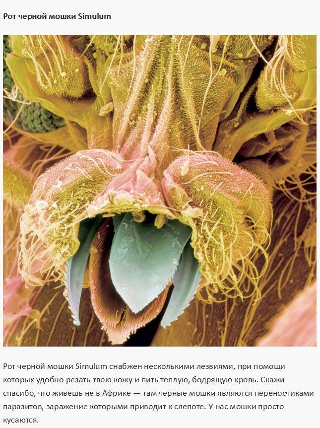 Как выглядят самые распространенные вредные микроорганизмы (12 фото)