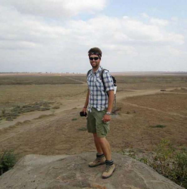 """Студент вернулся из Африки с живыми """"сувенирами"""" в ноге (5 фото)"""