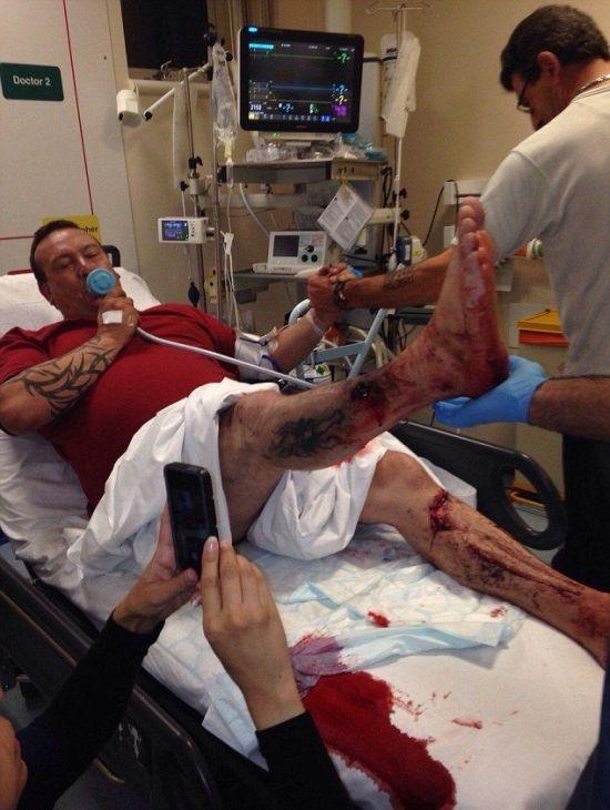 Электронная сигарета прострелила парню ногу (4 фото)