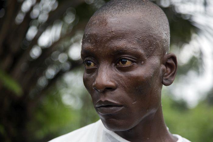 Жизнь либерийцев в карантине (40 фото)