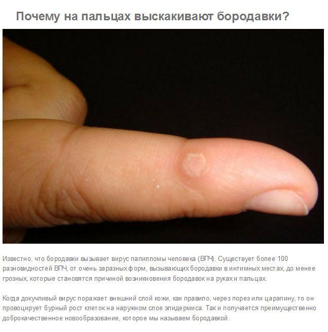 Ответы на интересные вопросы о нашем теле (10 фото)