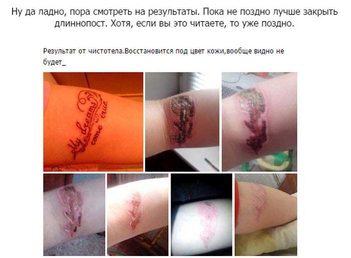 К чему приводит самостоятельное удаление татуировок (9 фото)