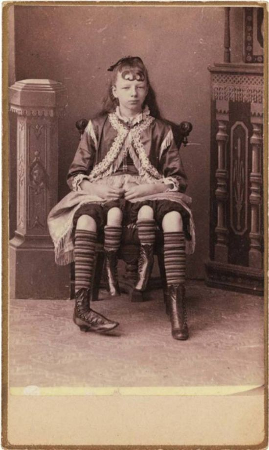 Популярные артисты старого цирка (20 фото)