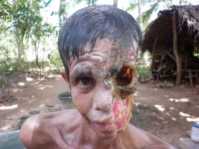 Некротический фасциит - болезнь стран третьего мира (10 фото)