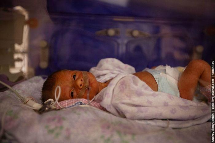 Репортаж из отделения реанимации новорожденных (20 фото)