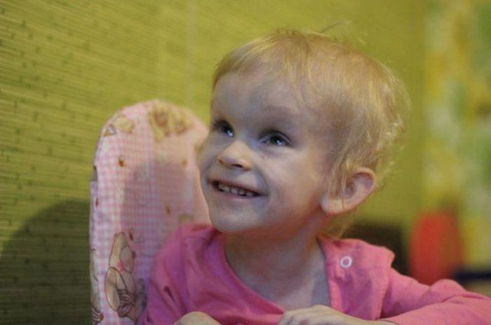 Спасение пятилетней Ани (3 фото)