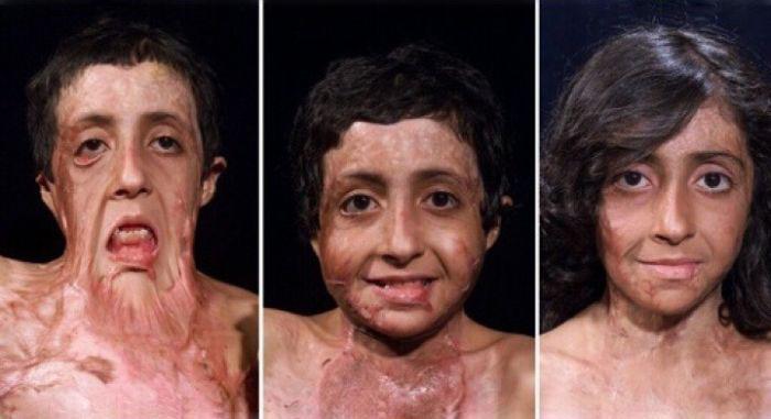 История удивительного спасения афганской девочки (4 фото)
