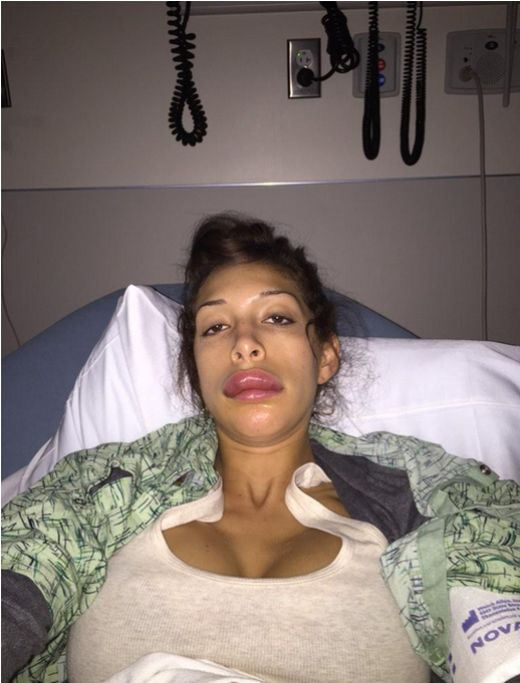 Фарра Абрахам стала жертвой пластической хирургии (5 фото)