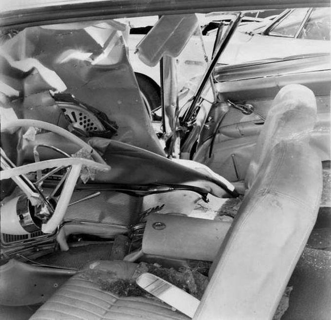 Более 50 лет металлический рычаг находился в теле мужчины (6 фото)