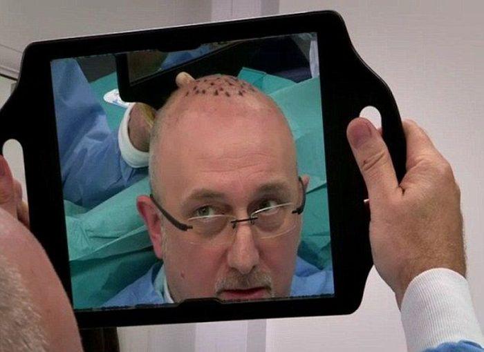 Неудачная операция по пересадке волос (5 фото)