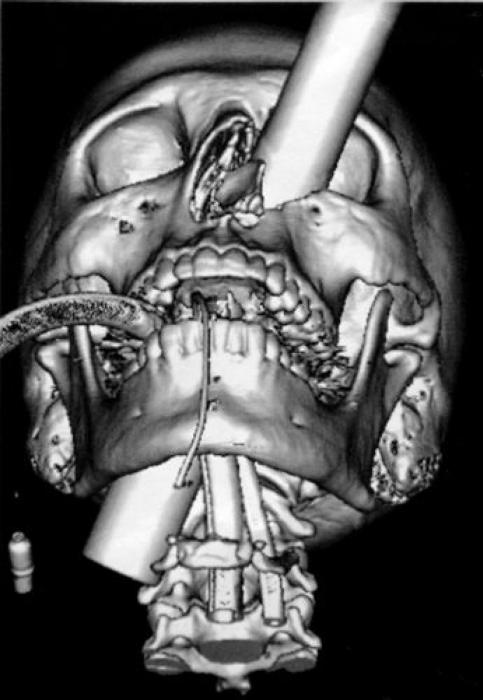 Необычные предметы в теле людей на рентгеновских снимках (37 фото)