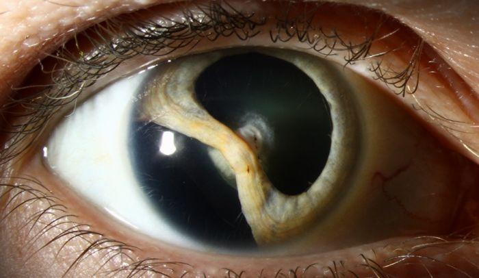 Заболевание колобома и его последствия (12 фото)