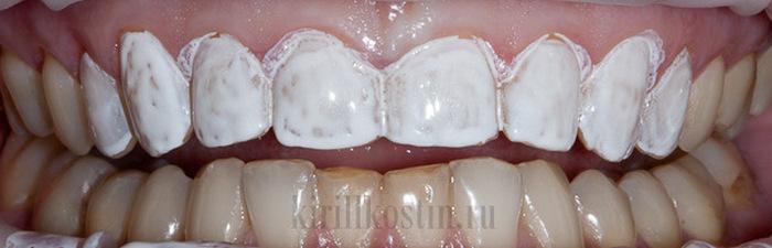 Чего стоит ждать от средств моментального отбеливания зубов (10 фото)