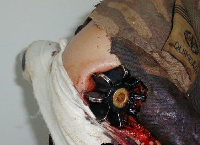 Минометная мина застряла в плече военнослужащего (3 фото)
