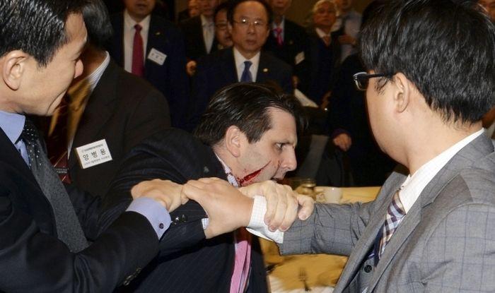 Вооруженный бритвой мужчина ранил американского посла в Южной Корее Марка Липперта (8 фото + видео)