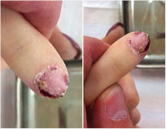 За критику в свой адрес мастер маникюра вырвала ногти клиентке (5 фото)