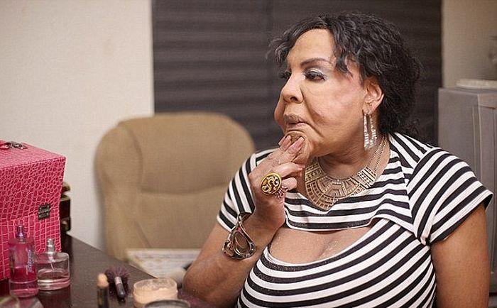 Изуродованная лжехирургом женщина-трансгендер Раджи Наринесинг обрела новое лицо (7 фото)