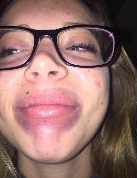 Девушки-подростки принимают участие в интернет-флешмобе Kylie Jenner Challenge (19 фото)