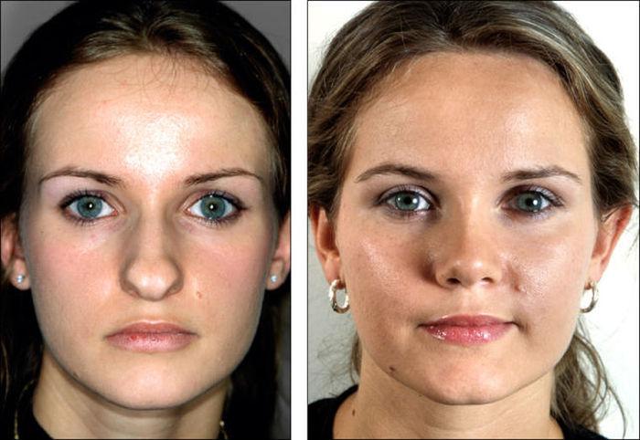Невероятная сила пластической хирургии (8 фото)