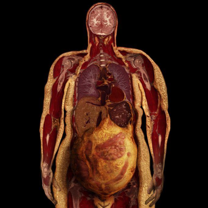 Фотографии и рисунки, которые дают представление о нашем организме (15 фото)