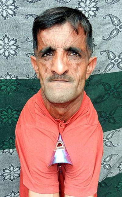 Раммехар Пуня, «резиновый человек» из Индии, побил собственный рекорд (6 фото + видео)