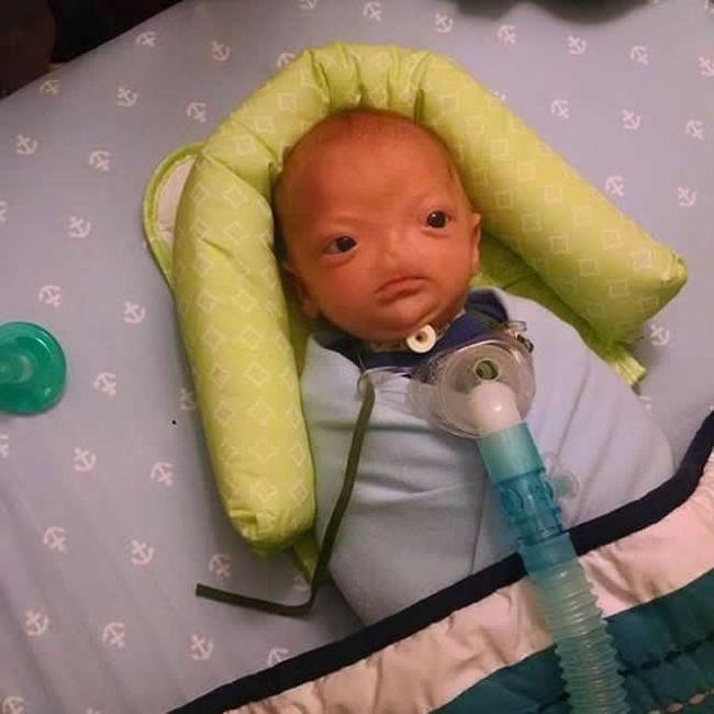 Эли Томпсон – милый 3-месячный мальчик с отсутствующим носом (12 фото)