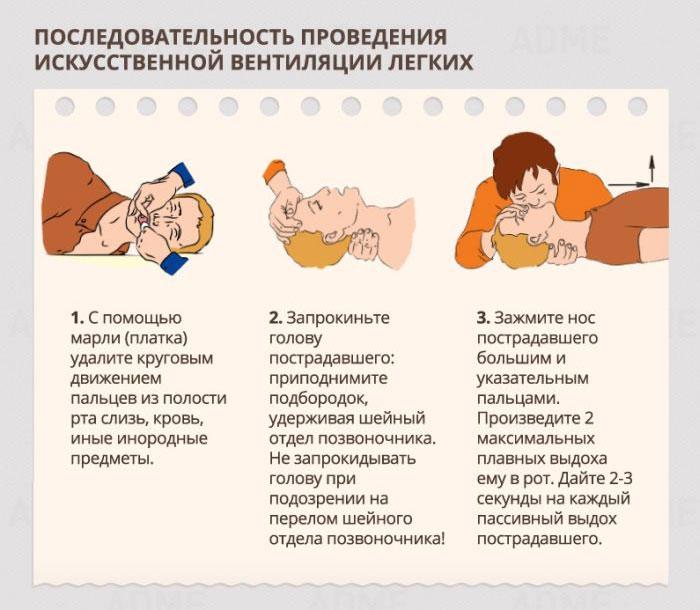 Правила оказания первой медицинской помощи (21 фото)