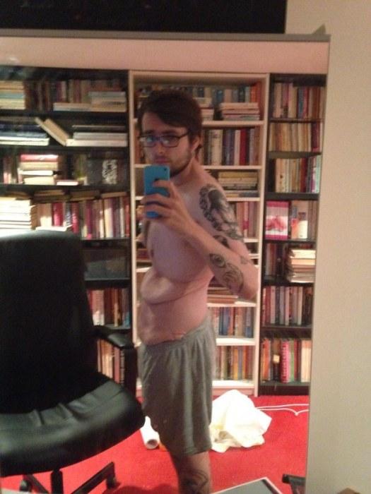 Лишняя кожа после похудения или «боевые шрамы» на теле (7 фото)