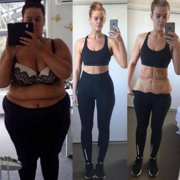 Похудевшая на 85 кг девушка дала решительный ответ недоверчивым пользователям сети (5 фото)