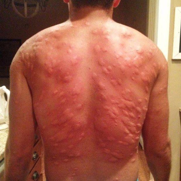 Последствия комариных укусов (2 фото)