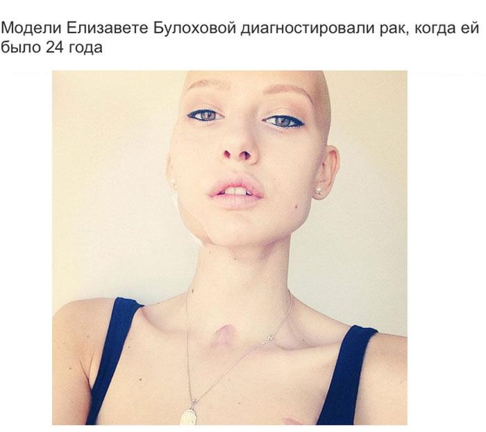 Красивая девушка в парке раком фото 288-8