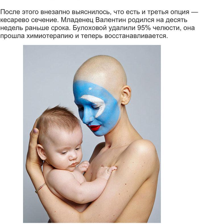 Больная раком девушка родила ребенка, невзирая на рекомендации врачей (13 фото)
