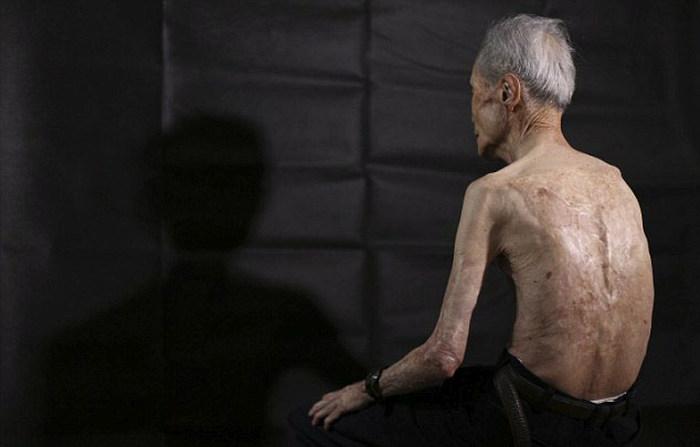 Последствия ядерного удара по Нагасаки на теле 86-летнего пенсионера (10 фото)