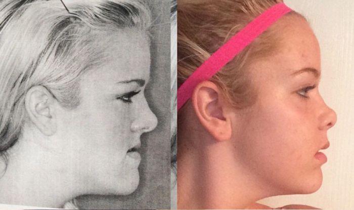 Как хирургия челюсти помогла девушке (2 фото)