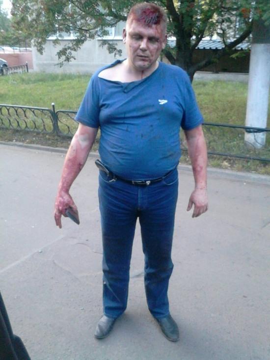 В Воронеже «подполковник полиции» избил водителя (3 фото + 4 видео)