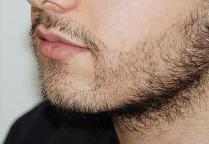 Пересадка волос в район бороды (4 фото)