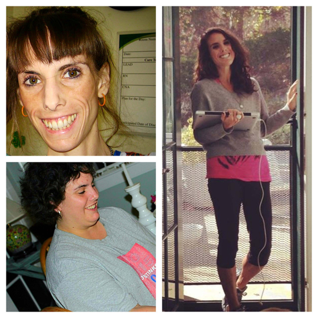 Бриттани Бегандер, испытавшая на себе, что значит страдать и от анорексии и от ожирения (9 фото)