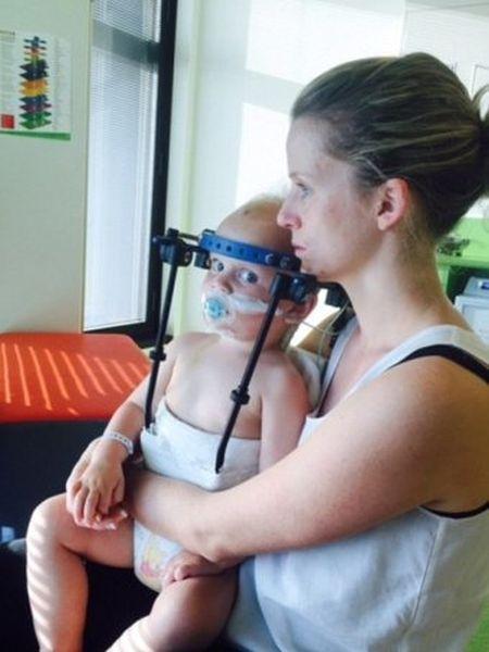 Австралийские врачи спасли жизнь ребенку, которому практически полностью оторвало голову в ДТП (2 фото)
