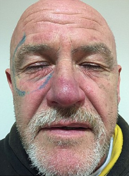 После веселой вечеринки британец обнаружил странное тату на своем лице (5 фото)