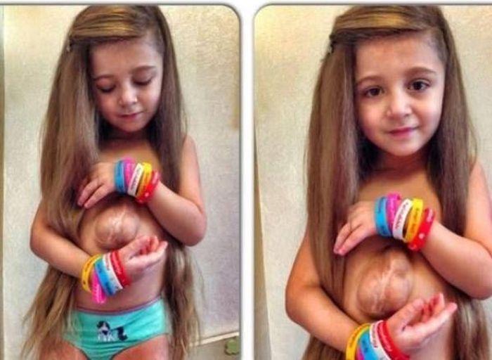 Вирсавия Борун-Гончарова - девочка, сердце которой можно потрогать (8 фото)