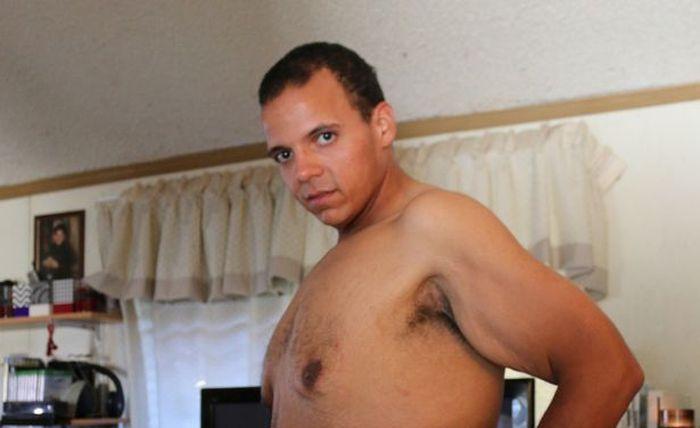 Американец похудел на 181 кг и столкнулся с проблемой лишней кожи (7 фото)