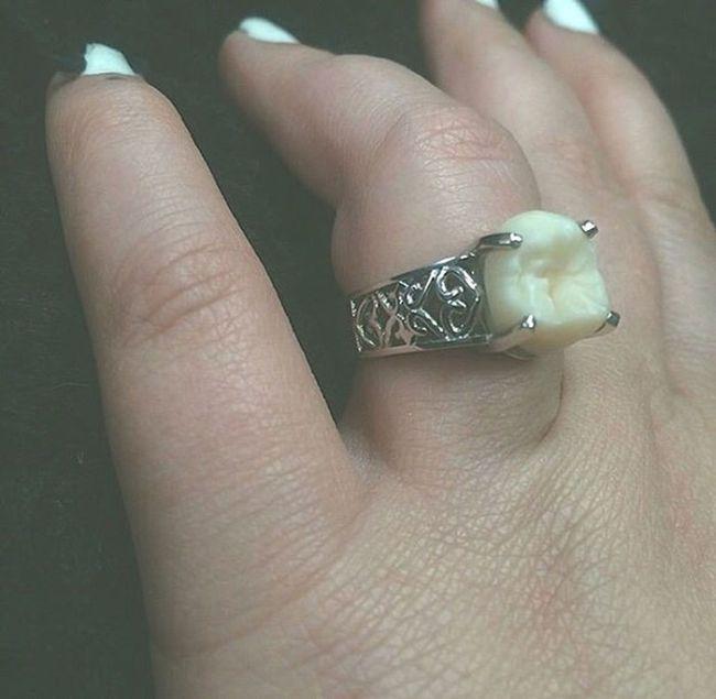 Парень сделал предложение девушке, подарив ей кольцо с собственным зубом мудрости (5 фото)