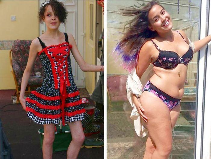 Девушка победила анорексию и теперь поддерживает своими фото людей, страдающих этой болезнью (11 фото)