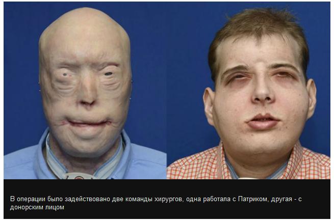 В США провели самую сложную в мире операцию по пересадке тканей лица (3 фото)