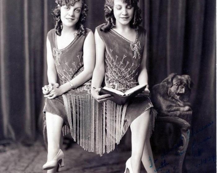 Сиамские близнецы сестры Хилтон, ставшие звездами водевиля (19 фото + видео)