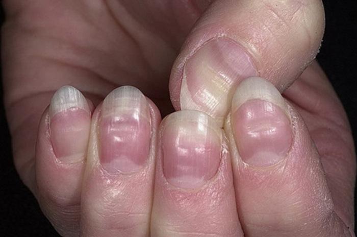 Что могут сказать ногти о нашем здоровье (7 фото)