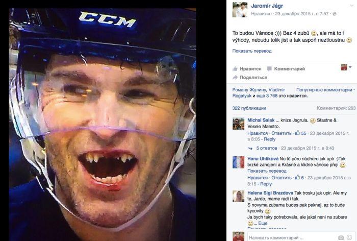 Чешский хоккеист Яромир Ягр лишился четырех зубов во время матча (2 фото + видео)