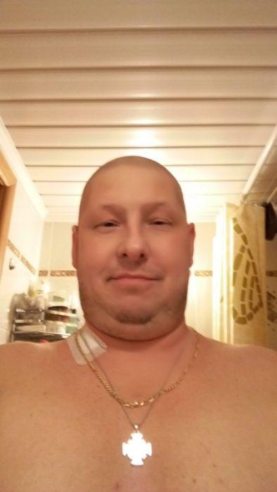 Один день из жизни человека, больного лейкемией (29 фото)