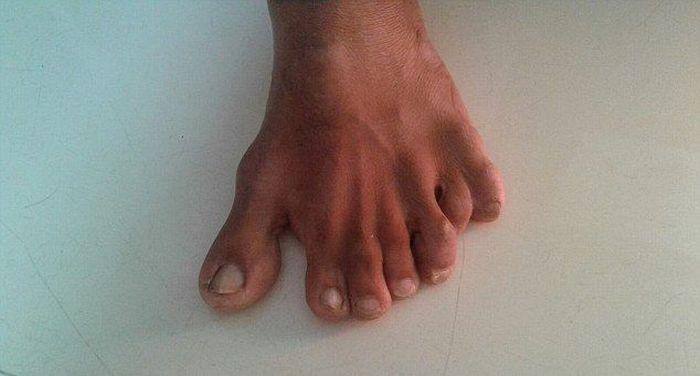 Девендра Сутхар - рекордсмен мира по количеству пальцев на руках и ногах (7 фото)