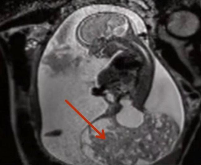 Врачи спасли жизнь еще не родившегося ребенка, избавив его от гигантской опухоли (5 фото)